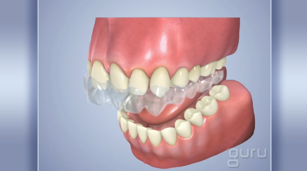 AestheticToothAlignment_flv