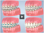 braces-compared